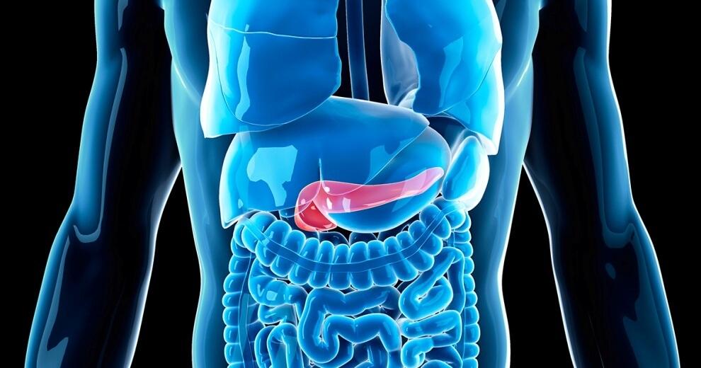 10 činjenica o raku pankreasa