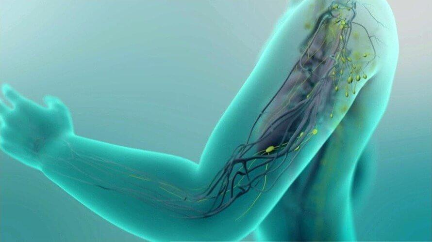 LIMFEDEM – Zoom video konferencija. Društvo za borbu protiv raka Sombor